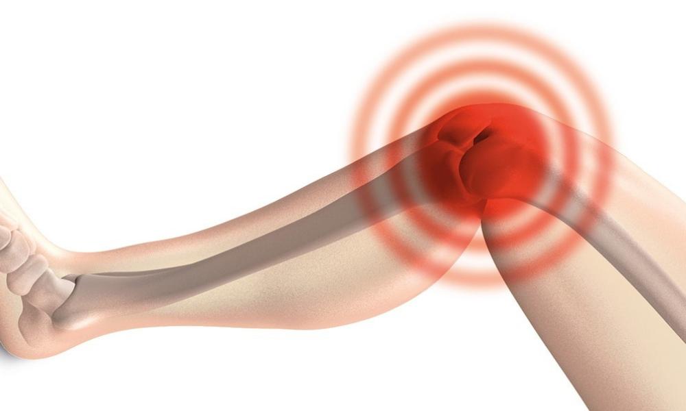 Knieschmerzen? Mögliche Ursachen und Differentialdiagnose