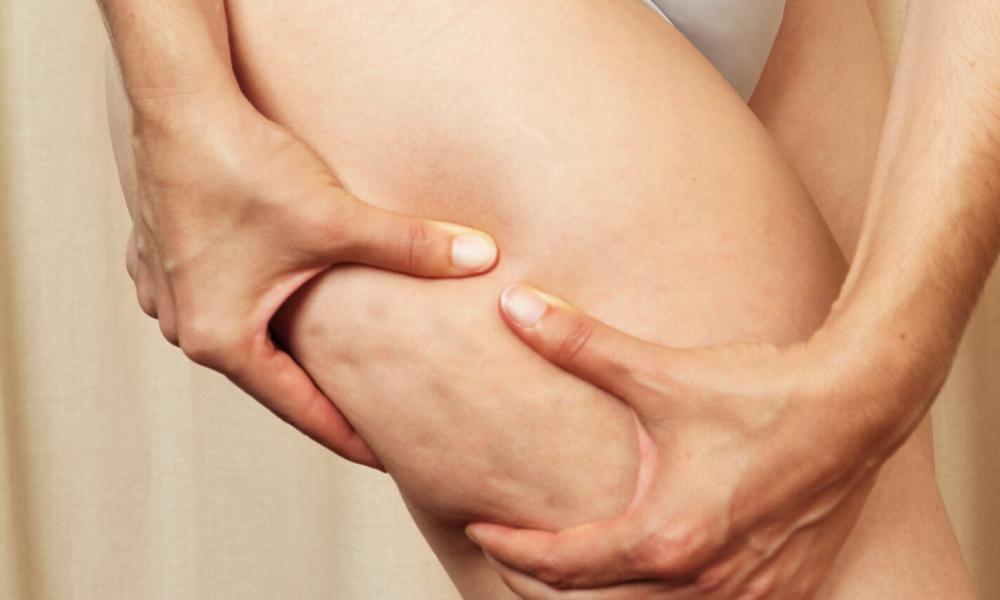 Cellulite endlich loswerden – 5 wirkungsvolle Tipps I #177